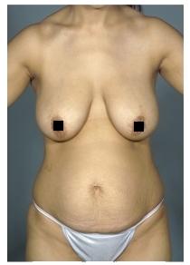 Пациентка после пластики живота. Прошло около 2 лет после процедуры.