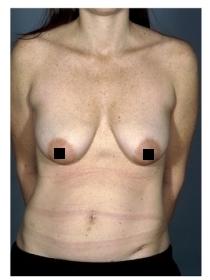 До и после операции по абдоминопластике