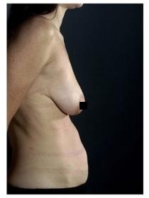 Абдоминопластическая операция, вид сбоку