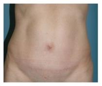 Вид спереди - после абдоминопластики