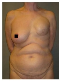 Восстановленная грудь - пациентка 1.