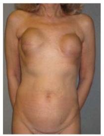После операции по реконструкции груди.
