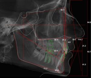 Ортодонт. Чем занимается этот врач