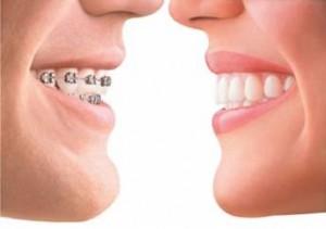 Почему ортодонтия так важна