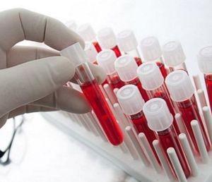 хроническая постгеморрагическая анемия