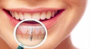 novejshie-tehnologii-implantatsii-zubov