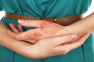 Некоторые данные о дерматите